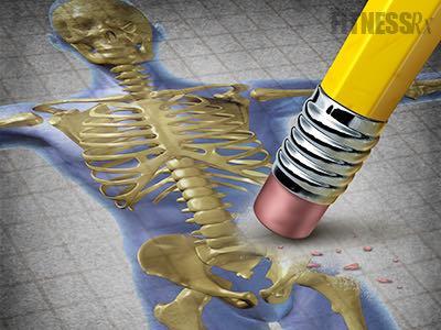 Men Get Osteoporosis, Too
