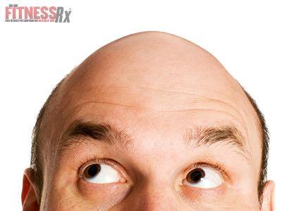 Balding Men Have an Increased Risk of Prostate Cancer