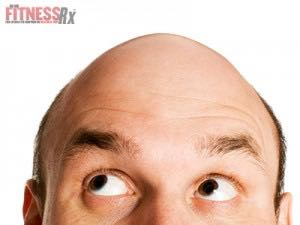 Balding Men Have an Increased Risk of Prostate Cancer