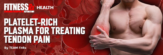 Platelet-Rich Plasma for Treating Tendon Pain