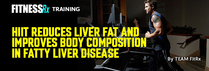 HIIT Reduces Liver Fat and Improves Body Composition in Fatty Liver Disease